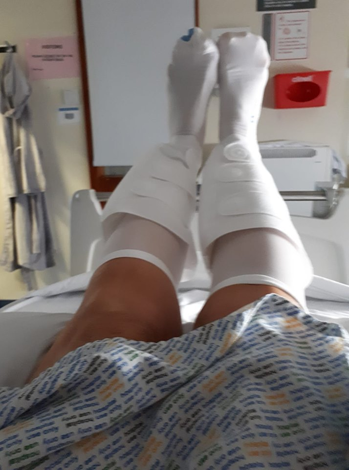Legs in ward